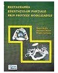 Restaurarea edentatiilor partiale prin proteze mobilizabile